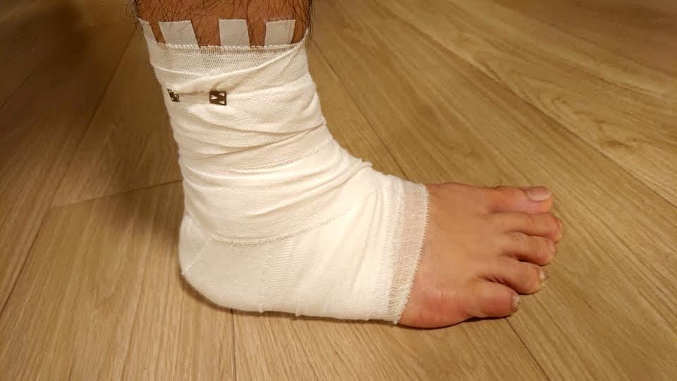 フルマラソンの1週間前に足首捻挫…レースは走れる?対処法と経過観察まとめ